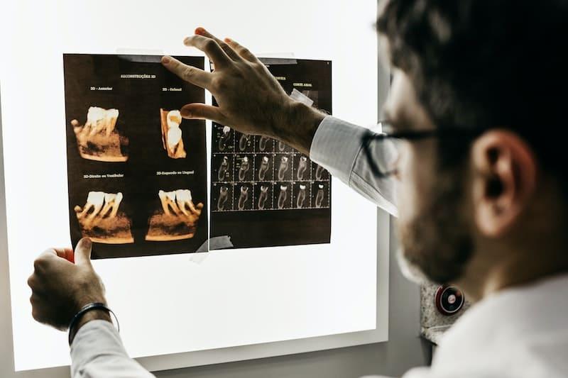 Los 5 trucos del dentista para el cuidado dental